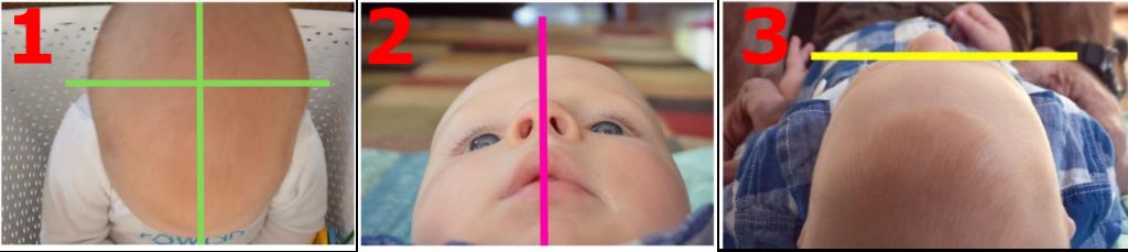 kreiva kūdikio galvytė; sveikas kūdikis; galvytės nugulėjimas