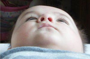 kreiva kūdikio galvytė; plagiocefalija; kūdikio galvos deformacija