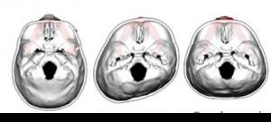 nugulėta kūdikio galvytė; kudikio galvos deformacija; plokščia galvytė