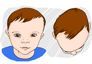plokscios galvos sindromas; plagiocefalija