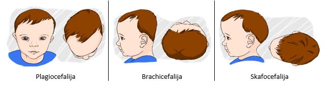 plagiocefalija; brachicefalija; kaukoles skliauto deformacijos