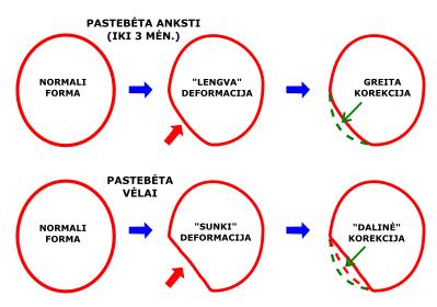 nuguleta kudikio galvyte plagiocefalija