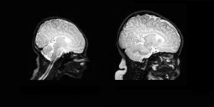 kudikio galvos apimtis; kudikio raida; smegenu vystymasis